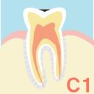 エナメル質のむし歯