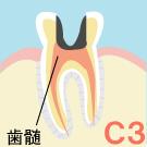 神経のむし歯