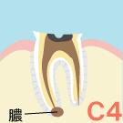 歯根のむし歯