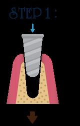 インプラント治療ステップ1